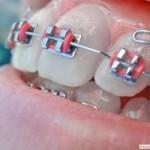 ortodoncja1