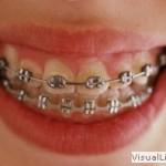 ortodoncja2