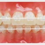 ortodoncja5
